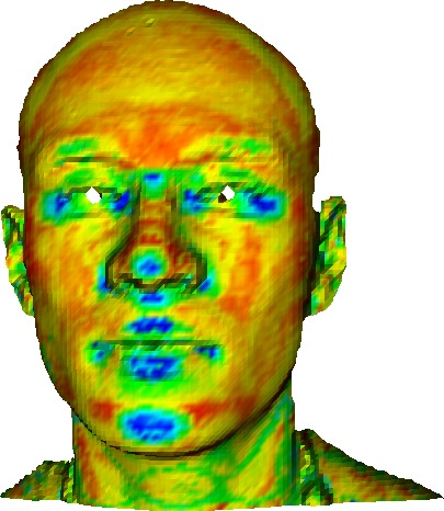 Automatic Keypoint Detection on 3D Faces Using a Dictionary of Local Shapes